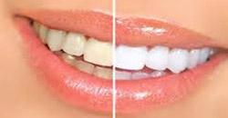 سفید کردن دندان روشی برای جرم گیری دندان در منزل