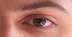 چشم علت و راه درمان پرش پلک چشم