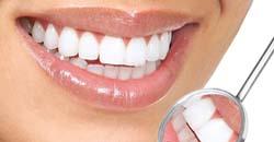 دندان1 با این سبزی دندانتان را سفید کنید